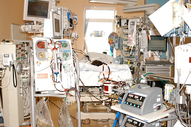 Venoarterial ECMO and Continuous Haemofiltration in use on a critically ill child